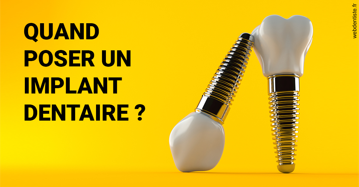 https://dr-charles-graindorge.chirurgiens-dentistes.fr/Les implants 2